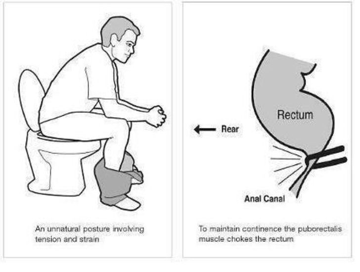 You're sitting on the toilet improperly all your life. Sad but True…