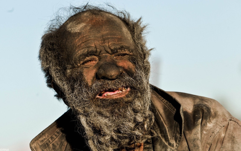 This 80 Year Old Man Has Not Taken A Bath In 60 Years. Just Wait Til You See Him… Whoa